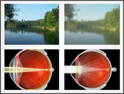 cataract_2