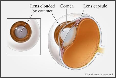cataract_3