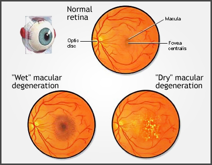 Age Related Macular Degeneration Amd Beckenham Optometrist
